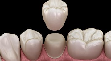 Dental Crowns Are A Good Option For Several Types Of Treatments