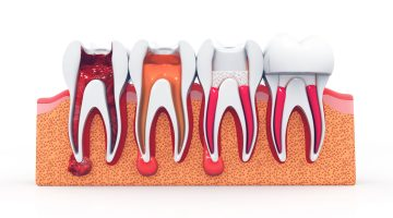 Why You May Need A Root Canal Treatment
