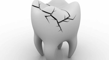 How To Handle A Broken Tooth
