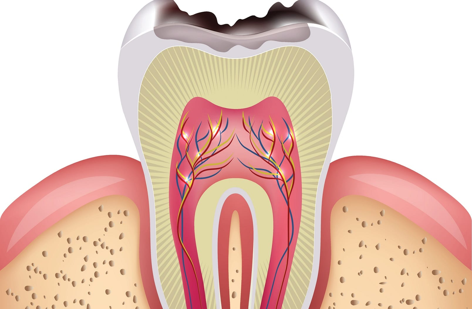 How Does a Cavity Form in a Tooth? | Lake Orion, MI