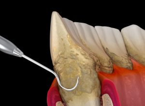 Oral hygiene: Scaling and root planing of Periodontitis stage 3 (conventional periodontal therapy). Medically accurate 3D illustration of human teeth treatment