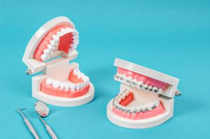 Compare tooth model and tooth model with metal wire dental braces and equipment on blue background.