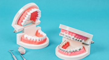 What Is The Role Of Restorative Dentistry?