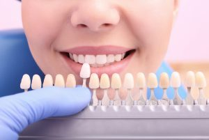 Dentist checking and selecting color of young woman's teeth, closeup