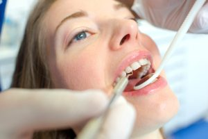 Open mouthed woman at the dentist